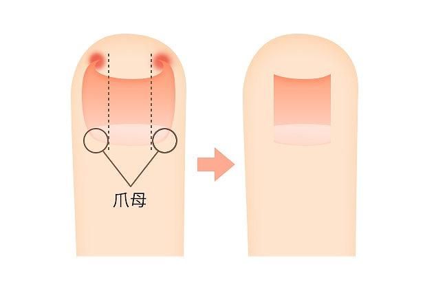 巻き爪の治療
